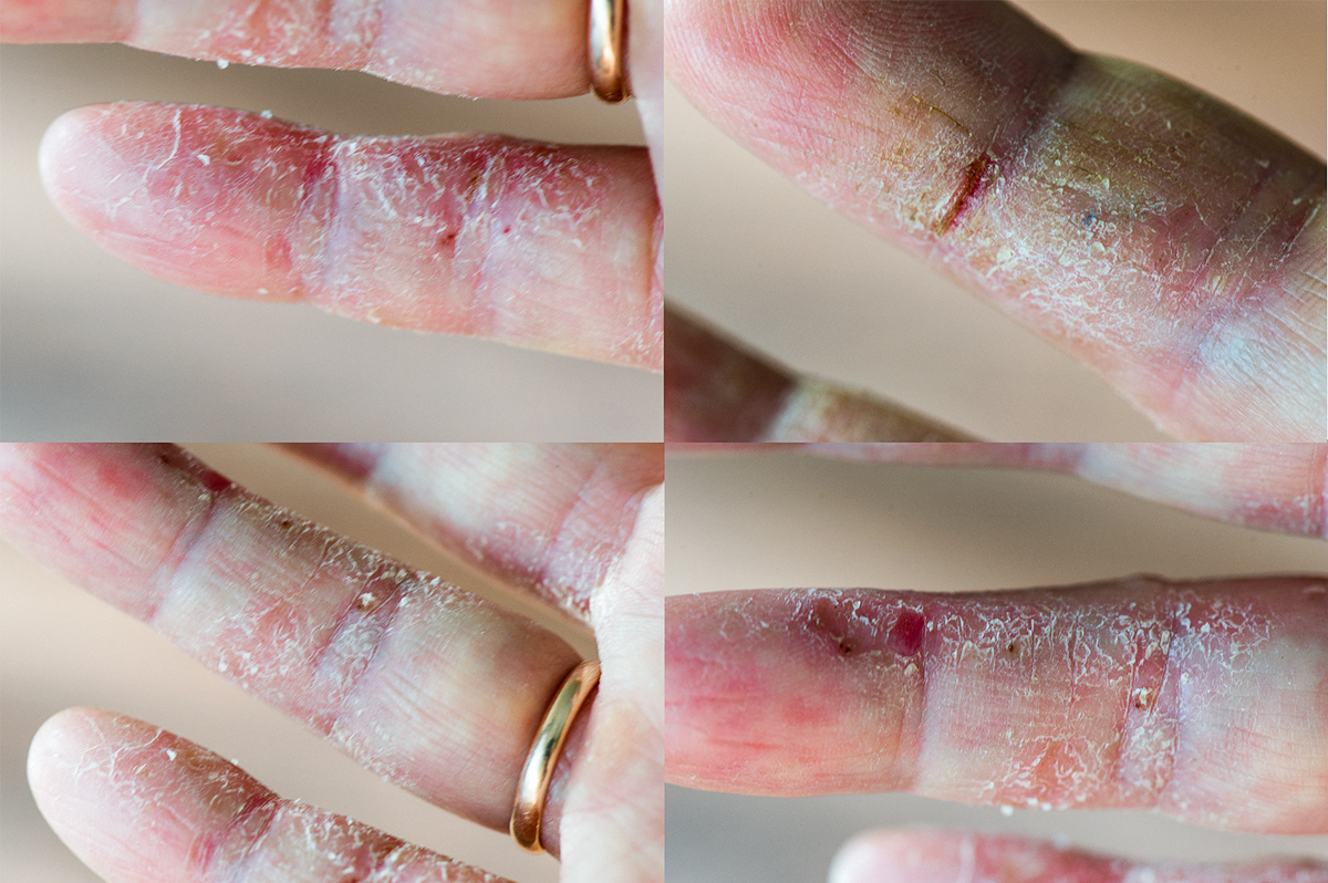 Moje dłonie wyglądały kiedyś o wiele gorzej