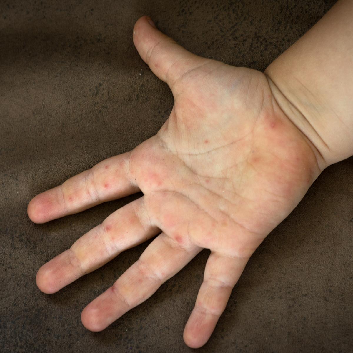 bostonka dłonie